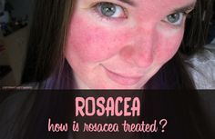 How is rosacea treated?