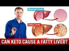 Can the ketogenic diet cause a fatty liver? Berg clears the confusion on keto and fatty liver and explains the important of getting enough vegetables. Palmer College Of Chiropractic, Doctor Of Chiropractic, Is Keto Safe, Fatty Liver Symptoms, Fatty Liver Treatment, Adipose Tissue, Gut Microbiome, Liver Disease, Lose Weight Naturally