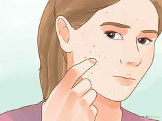 5 formas de quitar las manchas de la cara - wikiHow