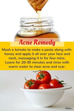 Acne Remedy Facial Mask - All you need is tomato and raw #honey. This #mask is great for #acne prone skin!