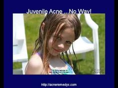 Acne can be beat by using the natural approach