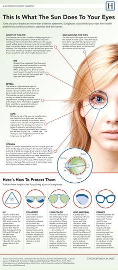 1000+ ideas about Eye Cataract on Pinterest