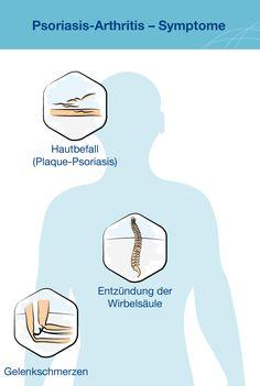 Infografik Symptome Psoriasis Arthritis Diagnose