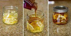 Verser du thé Dans un bocal... combiner à des tranches de citron, du miel et du gingembre si possible coupé en tranches. Fermer le récipient et le mettre dans le réfrigérateur, une gelée se forme. Pour servir, prendre une cuillère de cette gelée dans une tasse et versez de l'eau bouillante dessus. Conservez au réfrigérateur 2-3 mois. Et la vous avez un nectar contre les maux de gorges. Le miel est reconnu par la science, comme étant un remède pour de nombreux maux qui touchent l'être humain.