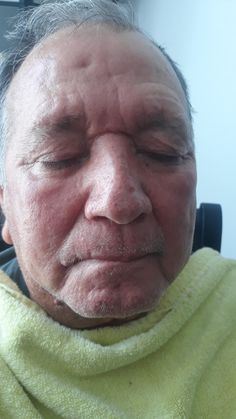 Looking at my dad skin before and afte, hiw his skin change, looking smooth,  glowing and younger.