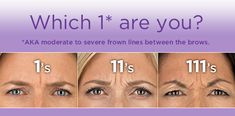 Botox can prevent these lines in the middle of the eyebrows.  It is #1 at getting the #1's off your forehead.