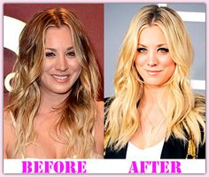 Kaley Cuoco Plastic Surgery Before And After Kaley Cuoco Plastic Surgery #KaleyCuocoPlasticSurgery #KaleyCuoco #poloneznews