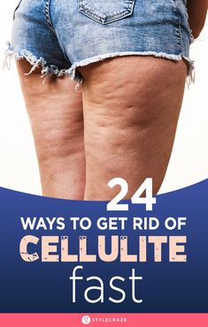 How To Get Rid Of Cellulite - 24 Best Ways To Get Rid Of Cellulite Fast: Is cellulite giving you nightmares? You stand in front of the mirror, and all you see are bumps and dimples. Causes Of Cellulite, Thigh Cellulite, Cellulite Exercises, Cellulite Cream, Cellulite Remedies, Reduce Cellulite, Anti Cellulite, Cellulite Workout, How To Get Rid
