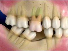 Consecuencias de la pérdida de un diente - YouTube
