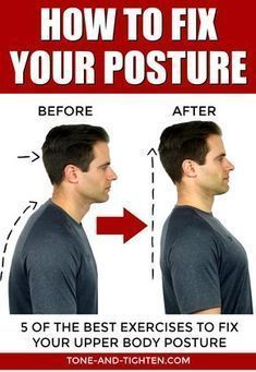 5 of the best exercises to fix your posture! Poor posture can cause neck pain, shoulder knots and headaches. Straighten out your back and correct your poor posture with these at-home exercises. Fix Your Posture, Bad Posture, Improve Posture, How To Correct Posture, Posture Correction Exercises, Neck Exercises, Flexibility Exercises, Posture Stretches, Golf Exercises