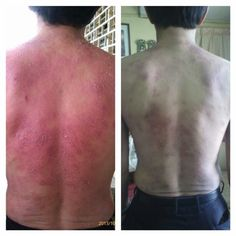 Chronic eczema treated with apple+grape stemcell! By mibelle biochemistry.. available in sublingual powder and spray(contain 3 stemcell including argan stemcell).. get it for only MYR 135 per pack and MYR220 per spray bottle.. or combination 1 pack+1 bottle for only MYR330.. worldwide shipping available. contact through whatsapp  +60163463516