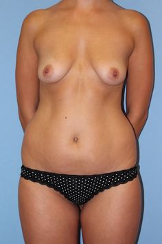 Before Mommy Makeover - Click to see what this patient looks like after her breast lift with augmentation, liposuction, and fat transfer to the buttocks with Dr Firouz!