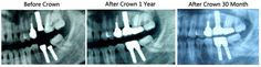 Lady at the age of 31 placed 3 Bioconcept Dental implants in the right side of her oral, 2 in the lower jaw and one in the upper jaw, they all work perfectly for the lady and cause no pain at all after crown 30 month.