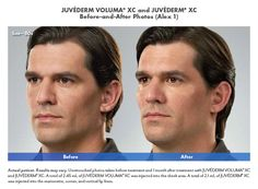 Before & after photo of Juvederm Filler Injections to diminish facial folds…