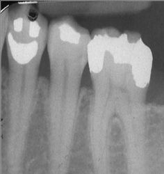 Dentaltown - Can you tell this tooth is very happy it's the weekend?