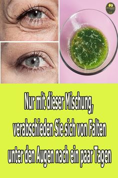 Deshalb empfehlen wir, dieses Video bis zum Ende anzusehen, weil wir in diesem Video eine spezielle Formel für die Hautpflege teilen werden. Diese natürliche Mischung wird Ihnen helfen, Falten und dunkle Augenringe unter den Augen schnell und sicher zu entfernen. #faltenentfernen #faltenreduzieren #faltenunterdenAugen Videos, Youtube, Under Eye Wrinkles, Dark Eye Circles, Varicose Veins, Look Younger, Beauty Tutorials, Health, Youtubers