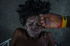 RENDEL, HAITI 10/12/2016 A cholera patient was bathed with soap and water mixed with bleach. The disease increased the misery Haitians faced in the aftermath of Hurricane Matthew. Meridith Kohut for The New York Times