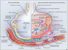 alveolar injury during acute phase of ARDS