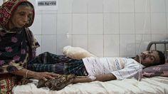 El 'hombre árbol' de Bangladesh recupera la esperanza | Planeta Futuro | EL PAÍS
