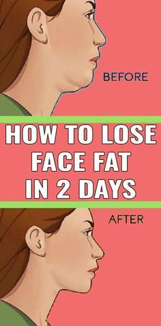 So it is difficult to shed face fat and can take a lot of work It is not too Tough to get the looks of a design and losing confront fat That is why we developed 7 workout. Reduce Face Fat, Muscles Of The Neck, Reduce Double Chin, Natural Face Lift, Muscle Stretches, Face Exercises, Abdominal Exercises, Body Coach, Facial Muscles