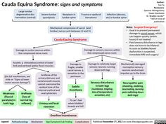 Signs and symptoms Cauda Equina Syndrome, Disk Herniation, Spondylolisthesis, Medical Mnemonics, Back Surgery, Spine Health, Psoas Muscle, Medical Facts, Signs And Symptoms