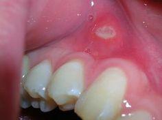 Aften in je mond kunnen erg pijnlijk zijn! Aften zijn pijnlijke zweertjes in je mond, op je tong of op je lippen. Het liefst wil je er zo snel mogelijk vanaf, het geeft last met eten en doet gewoon zeer. Een aft is een zweertjevan een paar millimeter bedekt met een geel of grijs laagje en een r