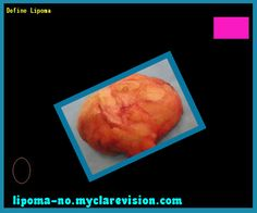 Define lipoma - Truth About Lipoma. You have nothing to lose! Visit Site Now