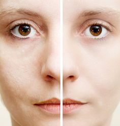 How To Reduce Enlarged Pores (includes recipes)  Steam Treatment Exfoliation Facial Masks