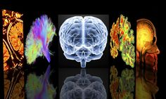 Comparing Symptoms and Prognosis of 13 Different Kinds of Dementia