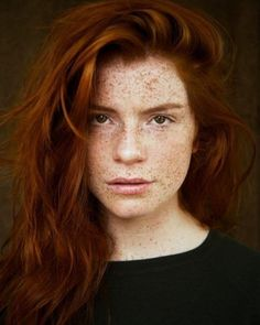 Lovely girl with freckles