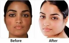 How to Lighten Skin – Overnight, Fast, Naturally Skin Whitening Home Remedies, Pills, and Cream