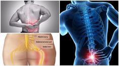 Tight Hips Stretches, Back Stretches For Pain, Easy Stretches, Relieve Back Pain, Back Exercises, Kidney Failure Symptoms, Middle Back Pain, Spinal Nerve, Back Pain Remedies