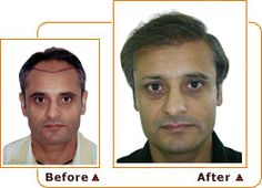 http://hairlossconsult.blogspot.com/2013/07/what-are-results-of-hair-transplant.html