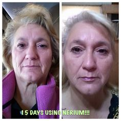 Myra's 15 day results!!!  OMG!!  Amazing!  www.leslienickels.nerium.com
