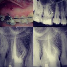 Caso reportado do dente 16 que teve a raiz mesial perfurada por um mini implante no tratamento de ortodontia. O autor tratou os canais palatino e distovestibular e os MV e MV2 até a obstrução onde houve a perfuração. Depois com acesso cirúrgico optou por remover da região apical até a perfuração trabalhou-se com pontas de ultrassom e utilizou MTA. RX final depois de 5 anos. Conta: Internacional Endodontia Journal. McCabe;Kavanagh 2012. #endotips #endo #endodontia #endodontista #endodontic…