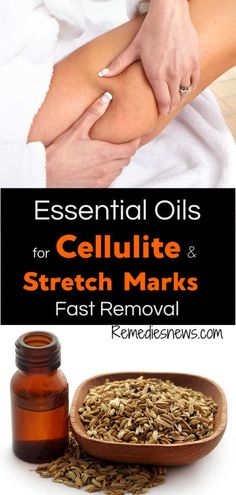 Essential Oils for Cellulite and Stretch Marks Removal. Learn how to reduce of cellulite and stretch marks with rosemary, grapefruit essential oil . Cellulite Wrap, Causes Of Cellulite, Cellulite Scrub, Cellulite Exercises, Cellulite Remedies, Reduce Cellulite, Anti Cellulite, Cellulite Workout, Facial Exercises
