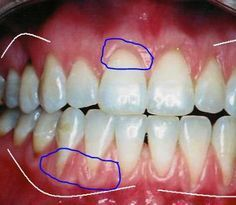 You can help fix gum recession with these home remedies for receding gums. #gumcare