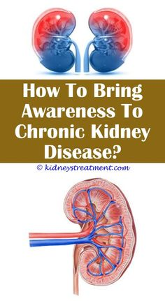 The 570 best kidney disease facts images on pinterest chronic kidney disease paindney disease programsronic kidney disease is the inability ccuart Choice Image