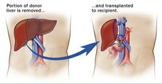#Transplant  #Liver Transplant  Liver transplantation is the process of replacing a diseased with a healthy liver. It is responsible for a number of important functions of the body like hormone production, glycogen storage, detoxification. It is the largest abdominal organ and is situated on the right side behind the ribs of upper abdomen. http://on.fb.me/ORYsap
