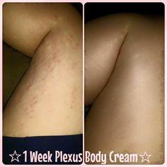 #plexusworks #stretchmarks #dplexuspower