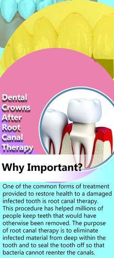 One of the common forms of treatment provided to restore health to a damaged, infected tooth is root canal therapy. This procedure has helped millions of people keep teeth that would have otherwise been removed. The purpose of root canal therapy is to eliminate infected material from deep within the tooth and to seal the tooth off so that bacteria cannot reenter the canals... Pompton Lakes, Best Dental Implants, Tooth Infection, Dental Crowns, Dental Services, Root Canal, Oral Health, Dental Care, Dentistry