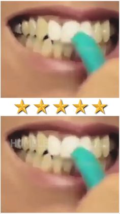 Using revolutionary nano technology, our whitening kit will instantly remove surface stains from your teeth, giving you an amazing white smile in seconds! Think of it as the Magic Eraser, except for your teeth! Beauty Care, Diy Beauty, Beauty Skin, Beauty Hacks, Teeth Whitening Remedies, Whitening Kit, Teeth Care, Skin Care, White Smile
