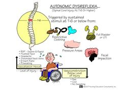 Autonomic Dysreflexia, spinal cord injury at T-6 or higher.