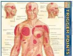 travell simons trigger point manual free download