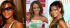 """Rihanna - Although naturally fair skinned,she does use Skin Bleach periodically.Either to rid a tan or whiten her skin a few shades.View entire board,Rihanna's skin color changes subtly & sometimes significantly.Celebrity skin bleaching is no secret.Although obvious to all,some celebrities deny it to the bitter end.Some bravely admit it while flippin' the bird like """"So what!? Mind your own damn business!"""".Celebrities listed in """"BEAUTIFUL & BLEACHED"""",did a wonderful job at transforming their…"""