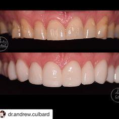 Smile Makeover, Make All, Dentistry, Crowns, Clinic, Simple, Pretty, Instagram, Dental