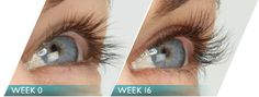 Latisse is AMAZING...my eyelashes have grown so much and so quickly...it's been about 3 weeks since I started using it and I never need mascara and my eyes stand out SO much.  I will never go without this product again.  Latisse for life!