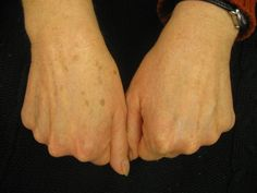 Amazing Results from using our Anti-Aging Hand Brightening Treatment Cream!  Get yours here! https://kfmartin.myrandf.com/Shop/Product/AAHC050