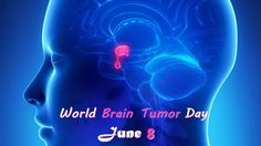 WORLD BRAIN TUMOR DAY – JUNE 8