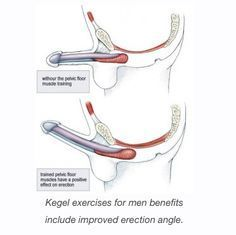 Kegel exercises are known by many to help women tighten their vagina's especially after giving birth. However these exercises can be done by men as well. The exercise primary goal is to strengthe...